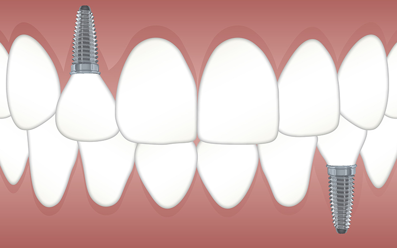 dental implants, teeth, illustration, Darlene Sand Wall DMD, dentistry